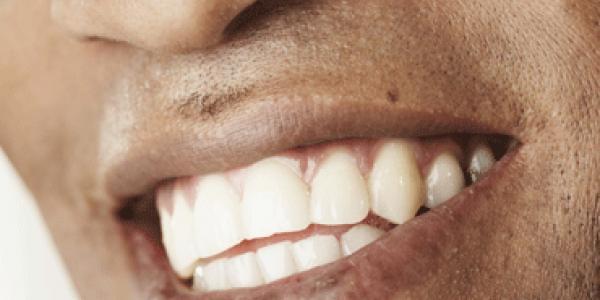 Good teeth